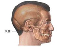 慢性乳突炎