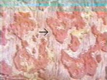 慢性细菌性痢疾