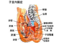 慢性子宫内膜炎