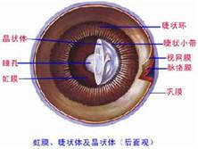 青光眼睫状体炎综合征