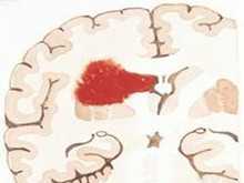 脑室内出血
