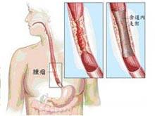 食管惡性腫瘤