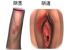 生殖器皰疹