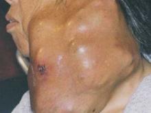 腮腺惡性腫瘤