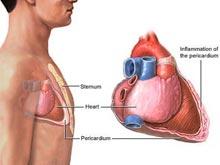 縮窄性心包炎