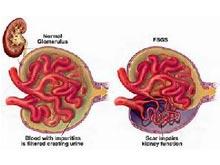 肾病综合征