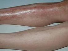 血栓性靜脈炎