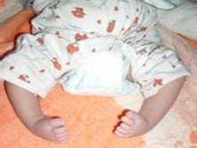 先天性足畸形