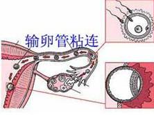輸卵管粘連