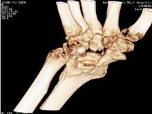 腕關節結核