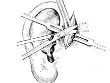 先天性耳前瘺管
