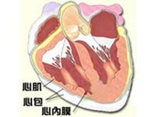 心內膜彈力纖維增生癥