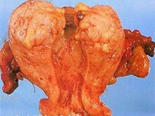 子宮內膜間質肉瘤
