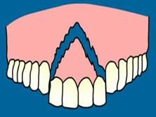 牙槽骨骨折