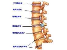 腰椎間盤變性