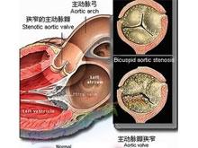 主動脈瓣狹窄