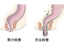 直腸粘膜脫垂