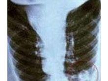 衣原體肺炎