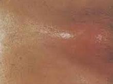 性病性淋巴肉芽腫