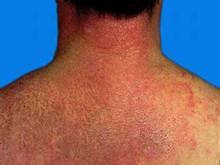 多发性肌炎