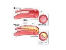 主動脈硬化