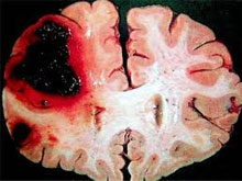 腦動脈硬化