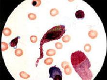再生障礙性貧血