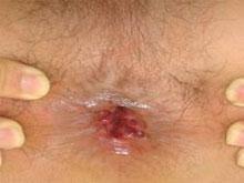 肛門尖銳濕疣