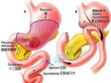 胃、十二指腸潰瘍大出血