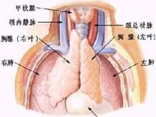 先天性胸腺發育不良