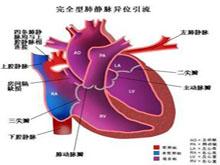 完全性肺静脉异位引流