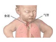 小兒支氣管炎