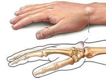 手腕腱鞘炎