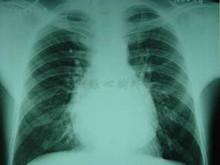 慢性縮窄性心包炎
