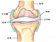 骨與關節結核