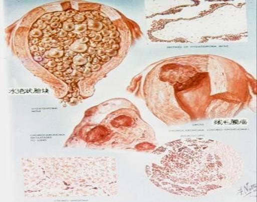 妊娠滋养细胞疾病
