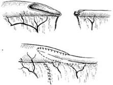 先天性肠狭窄