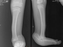先天性骨與關節畸形