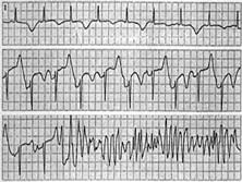 不穩定型心絞痛