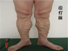 单纯性下肢静脉曲张