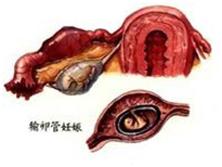 持續性輸卵管妊娠