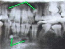 放射性頜骨骨髓炎