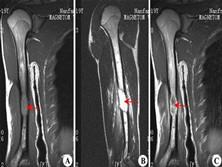 骨嗜酸性肉芽肿
