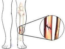脛骨應力骨折