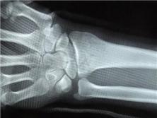 橈骨、尺骨莖突骨折