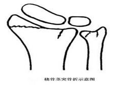 橈骨莖突骨折