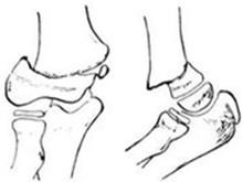 股骨髁上骨折