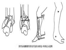 脛骨遠端爆裂骨折