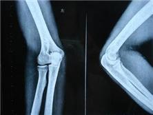 橈骨小頭骨折