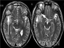 骨血管外皮細胞瘤